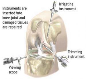 خارج کردن مایع مفصلی
