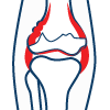 knee-replacement-icon